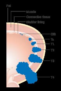 Bladder-Cancer-Stages