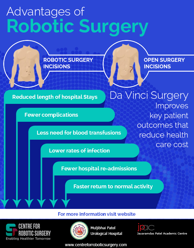 Robotic Surgery Robotic Surgery In India Best Urology Kidney