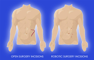 Robotic Surgery Robotic Surgery In India Best Urology Kidney