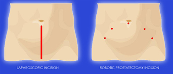 Robotic Radical Prostatectomy Robotic Surgery In India Best